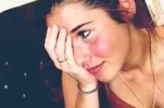 Sarah Lombardi ist erschrocken, als sie ihre roten Wangen sieht