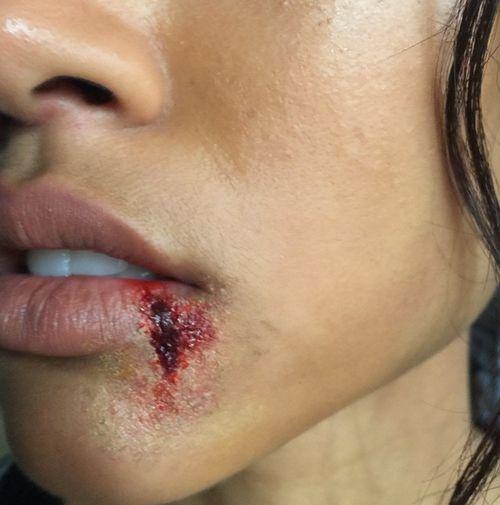 Karrueche Tran zeigte sich mit blutiger Lippe
