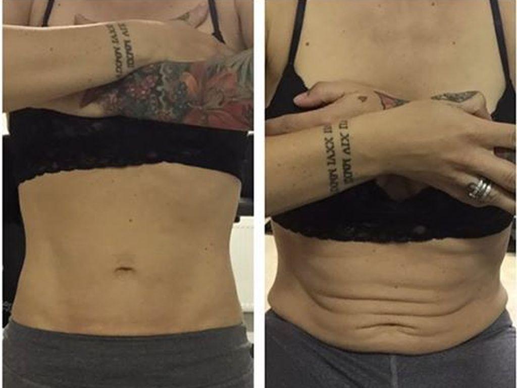 Charlotte Würdigs Bauch rund 5 Monate nach der Geburt