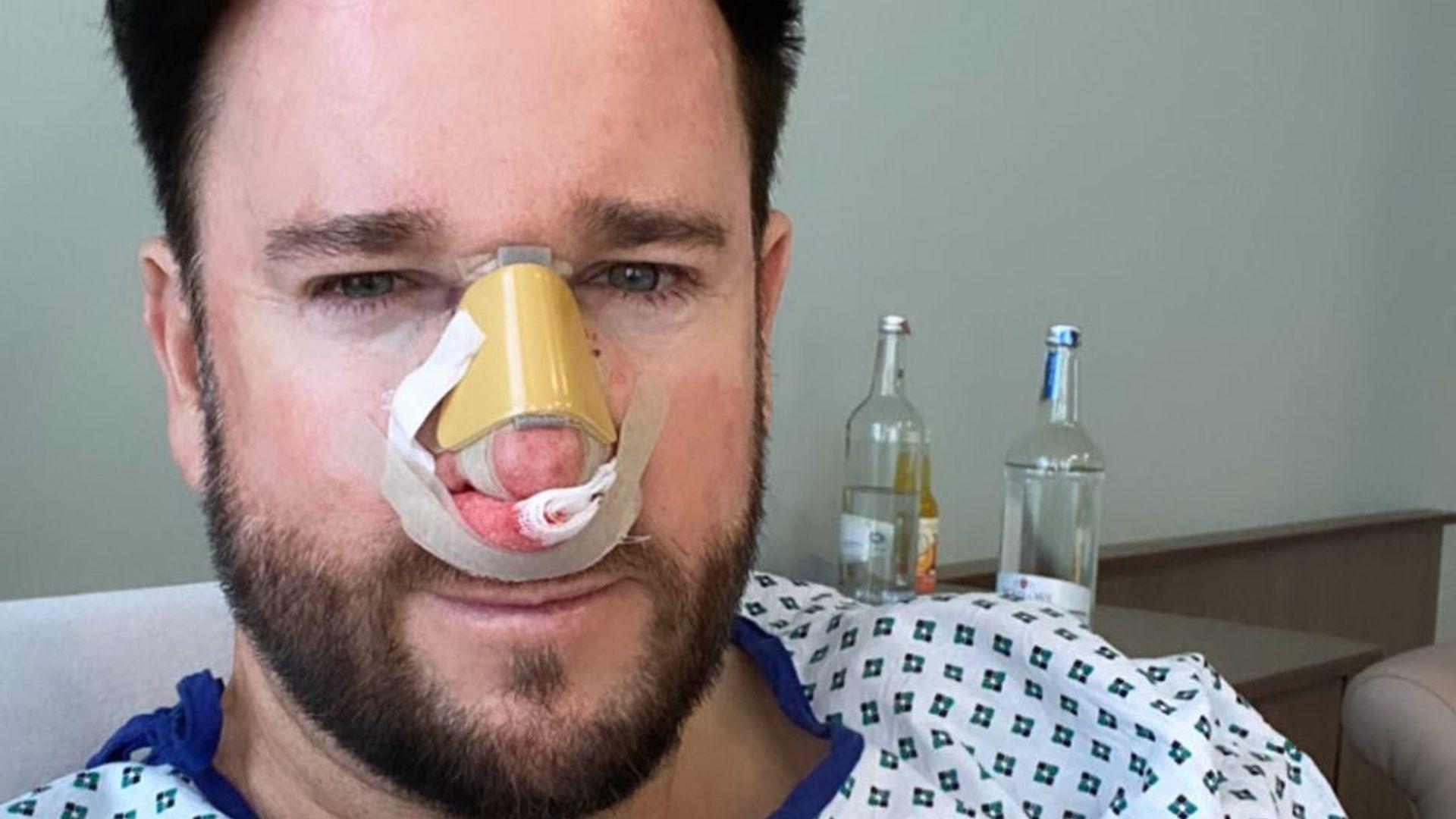 Vor Der Hochzeit Der Wendler Lasst Seine Nase Operieren