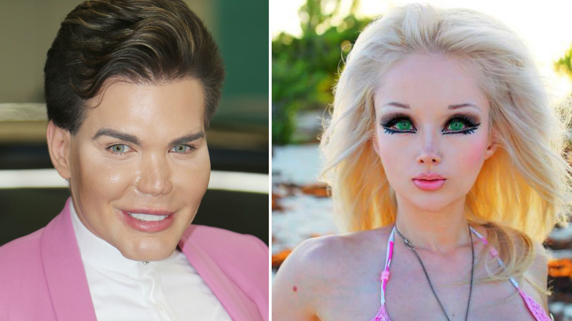 the real ken and barbie Anastasia reskoss, 20, and quentin dehar, 23, have splurged an eye-popping $322,728 on almost every plastic surgery imaginable so they can look like their idols, barbie and ken.