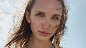 Schlimme Endometriose: Anna Wilken hatte psychische Probleme