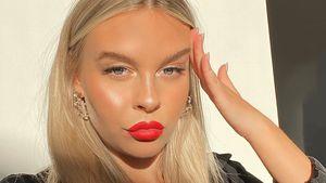 Ehrlich: Dagi Bee über Beauty-Eingriffe und ihre OP-Pläne