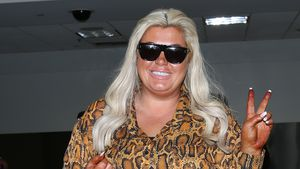 Beauty-SOS: Gemma Collins mit Selbstbräuner-Unfall in L.A.
