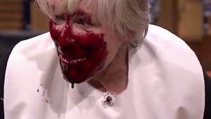 Gruselig: Glenn Close' Gesicht blutverschmiert?