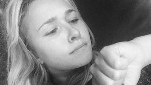 Urlaubs-Drama: Hayden Panettiere von Affe angegriffen!