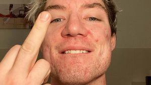 """""""F*** Akne"""": Heiko Lochmann offen über seine Hautprobleme"""