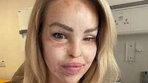Not-OP an Speiseröhre: Säure-Opfer Katie Piper gibt Update
