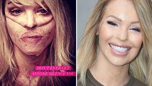 Säure-Opfer Katie Piper schockt mit Narben-Foto