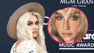 Ungewohnt natürlich: Kesha steht zu ihren Sommersprossen