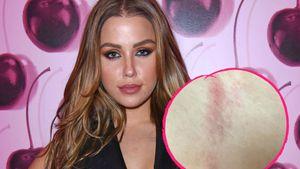 Wegen Ledergurt-Top: Kim Gloss hat fiesen Hautausschlag