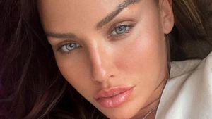 Reue: So steht Kim Gloss heute zu ihren Schönheitseingriffen