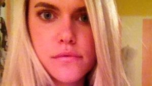 Nach Horror-Unfall: Model klagt auf Schmerzensgeld