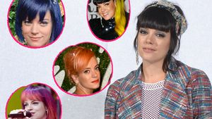 Beauty-Desaster bei Lily Allen: Haarausfall wegen Coloration