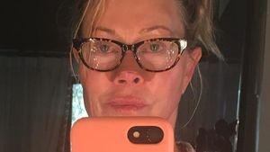 Finale Behandlung: Melanie Griffith hat Hautkrebs besiegt!
