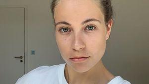 Bruch-Gefahr: Melina Sophie hat schwindende Knochendichte