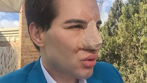 """Ken""-Double Rodrigo Alves"