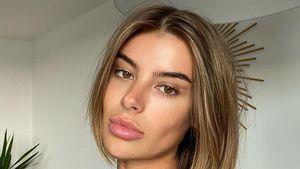 Beauty-Wahn: Darum ließ sich GNTM-Romina die Lippen machen