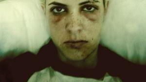 Samantha Ronson nach Unfall übel zugerichtet