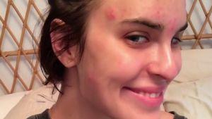 Herrlich uneitel: Tallulah Willis setzt ihre Akne in Szene