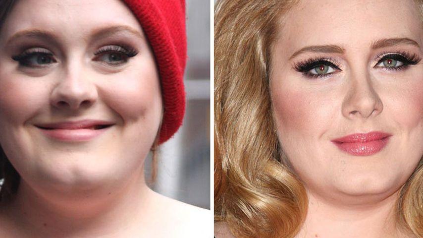Hat sich Adele etwa die Nase verschmälern lassen?