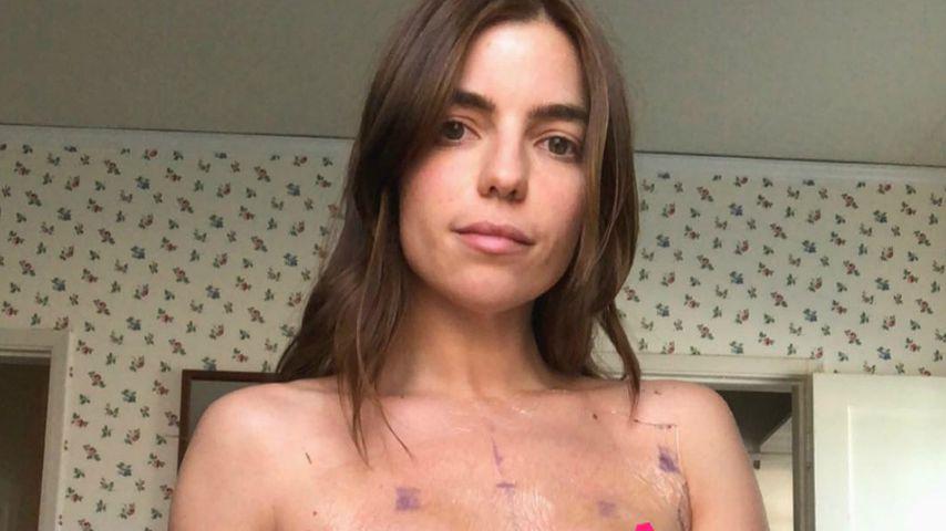 Nach Brustkrebs: Angela will Implantate entfernen lassen