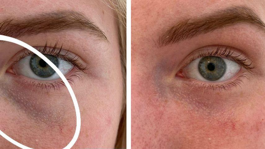 Antonia Hemmer vor (links) und nach (rechts) der Augenringunterspritzung