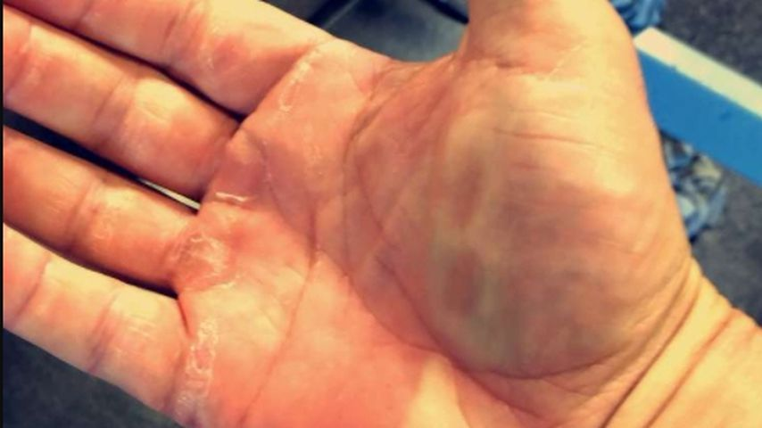 Bastian Yottas Hand