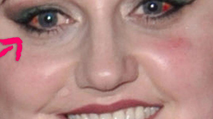 Autsch! Beth Ditto mit geplatzten Adern im Auge