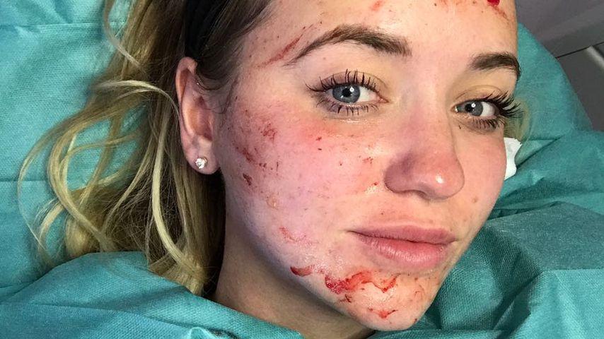 Vampir-Lifting: Cathy Lugner lässt sich beim Doc aufmotzen!