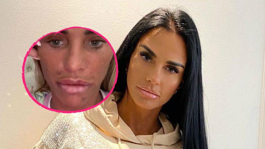 Fieser Botox-Fail! Katie Price konnte nicht mehr lächeln