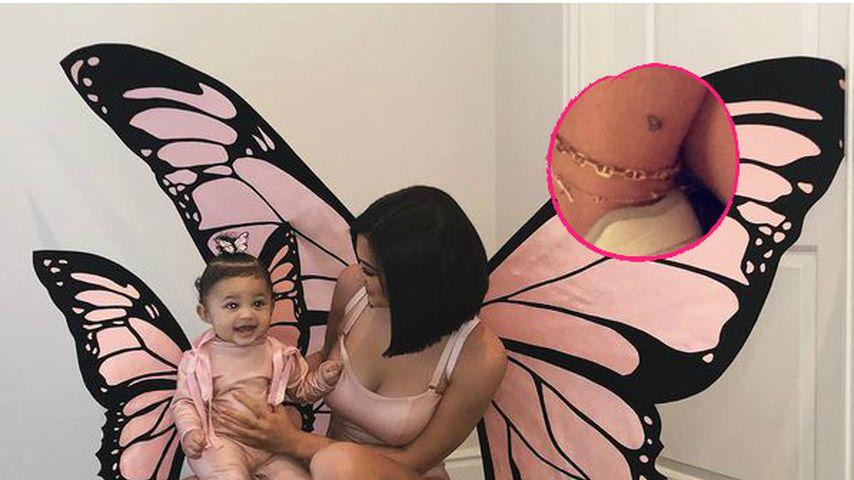 Die Bedeutung hinter Kylie Jenners Schmetterlings-Tattoo