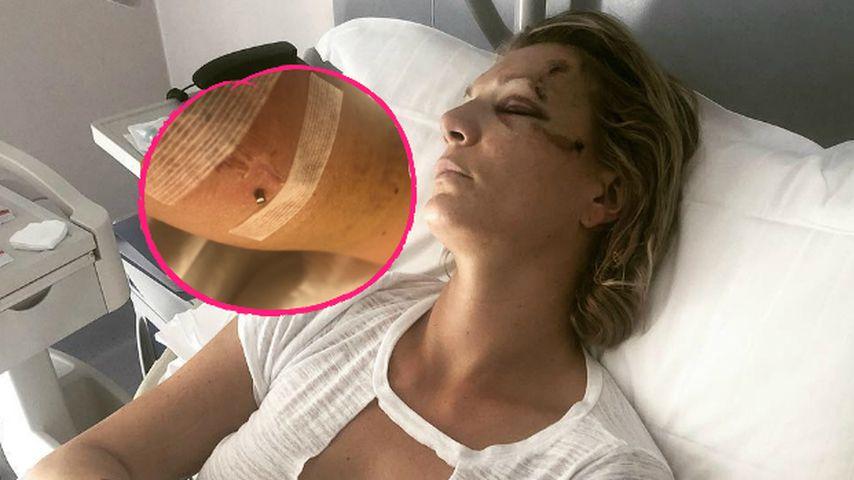 Nach Unfall: Stück Stahl ragte aus Maria Höfl-Rieschs Arm