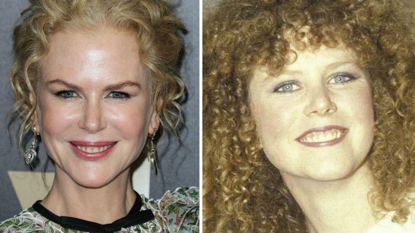 Schönheitswahn: Ist Nicole Kidman süchtig nach Botox?