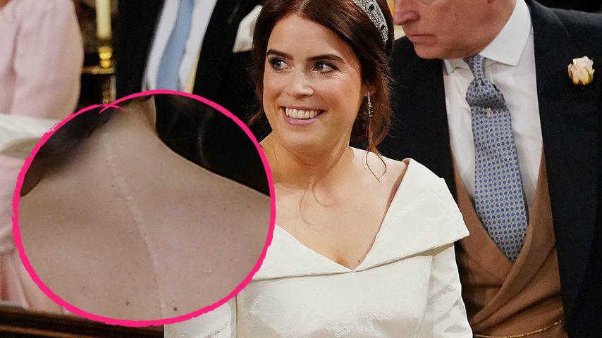 So offen zeigte Prinzessin Eugenie ihre Narbe im Brautkleid!