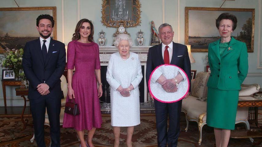 Warum ist die Hand von Queen Elizabeth II. blau verfärbt?