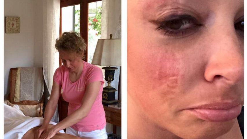 Ganz zerknittert: Daniela Katzenberger schmerzt der Rücken
