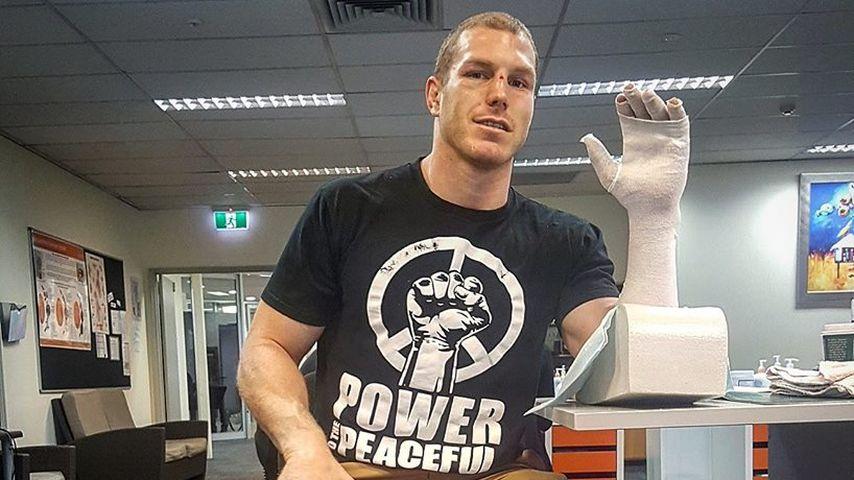 Nach Verletzung! Rugby-Spieler postet Ekel-Foto seiner Hand