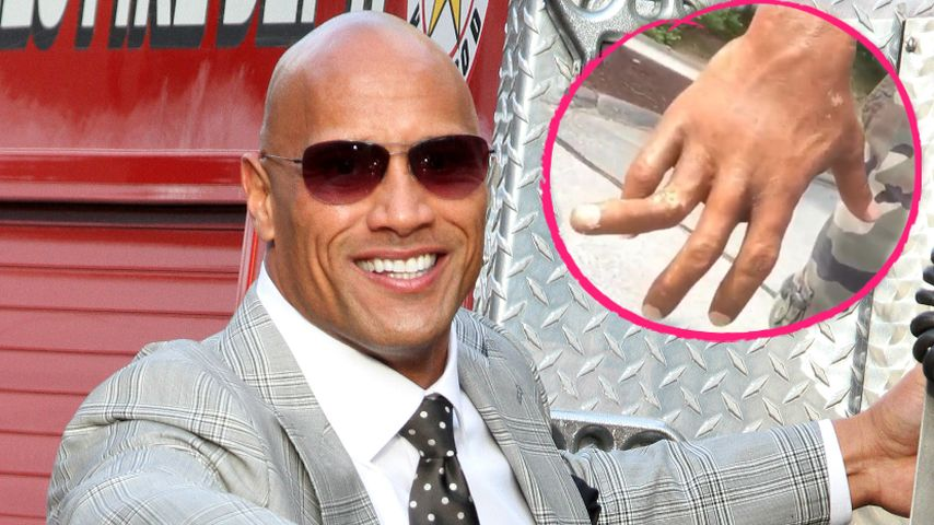 Autsch: Dwayne Johnson zeigt böse Finger-Verletzung