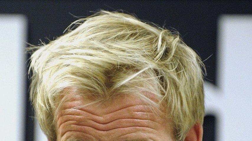 TV-Koch Gordon Ramsay braucht Haar-Implantate
