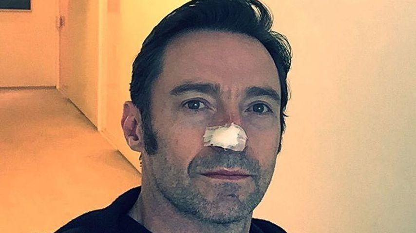 Zum 6. Mal: Hugh Jackman erneut wegen Hautkrebs behandelt