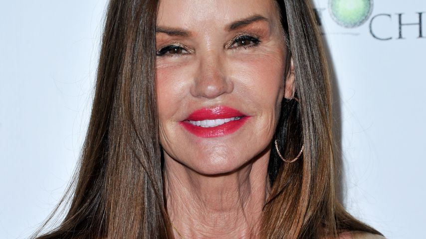 Schock: Ex-Supermodel Janice Dickinson hat Brustkrebs!