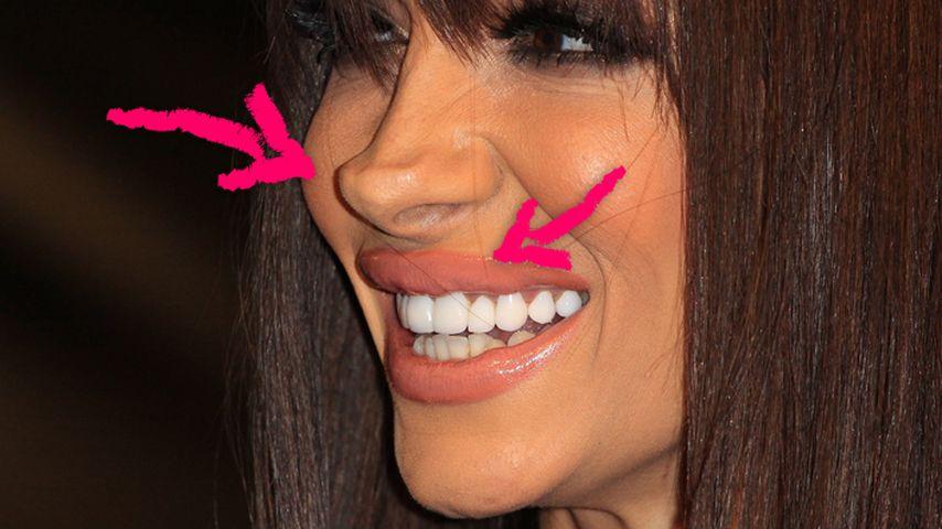 Jodie Marsh: Nase, Lippe, Brust - Echt oder Fake?