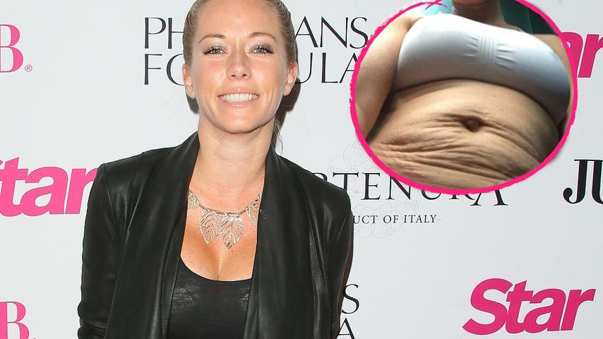 Nackte Wahrheit: Kendra Wilkinson zeigt Schrumpel-Bauch