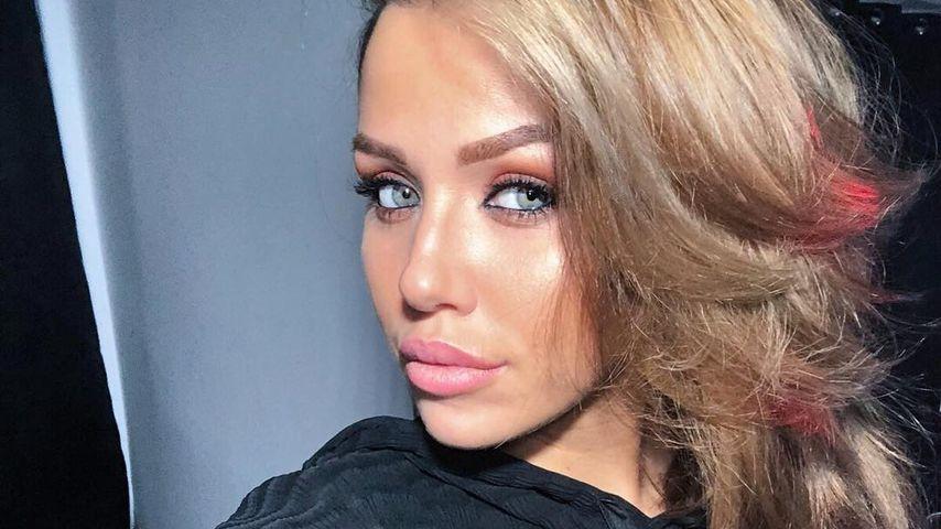 Wegen Beauty-OPs? Kim Gloss verdient bis zu 20.000€ im Monat