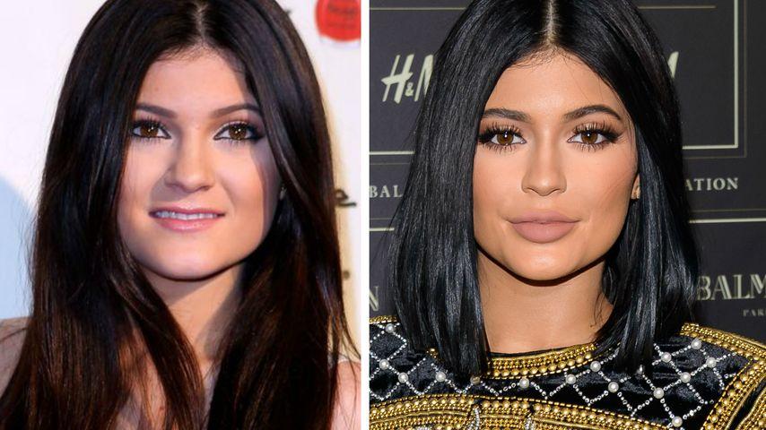 """Kylie Jenners Lippen-Eingriff: """"Ich hatte es keinem erzählt"""""""