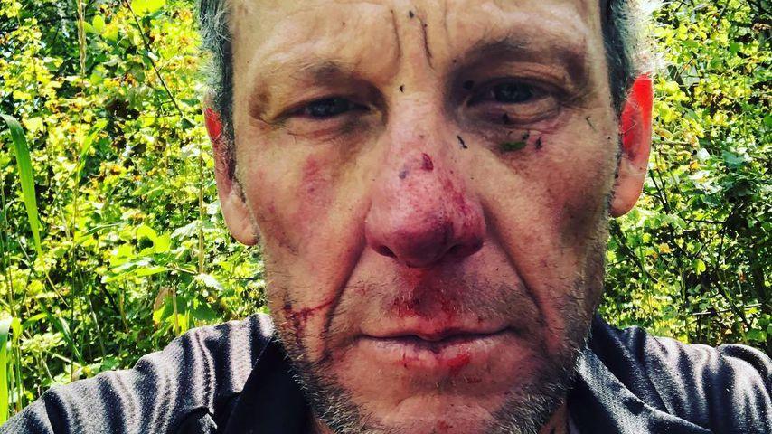 Blutige Nase: Lance Armstrong nach Rad-Unfall im Krankenhaus
