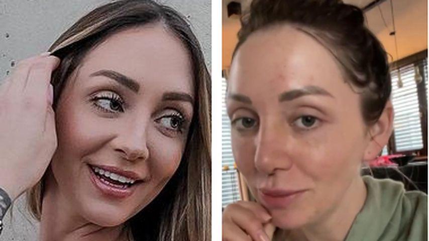 Kurz nach OP: Gerdas Ex-BFF Larissa zeigt ihre neue Nase