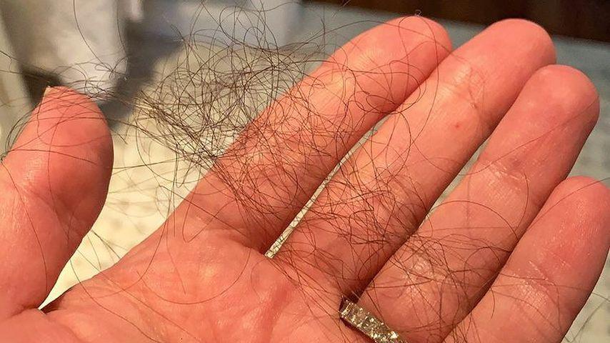 Lea Micheles ausgefallenen Haare