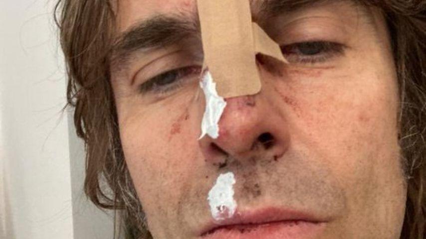 Ramponiertes Gesicht: Liam Gallagher aus Helikopter gestürzt